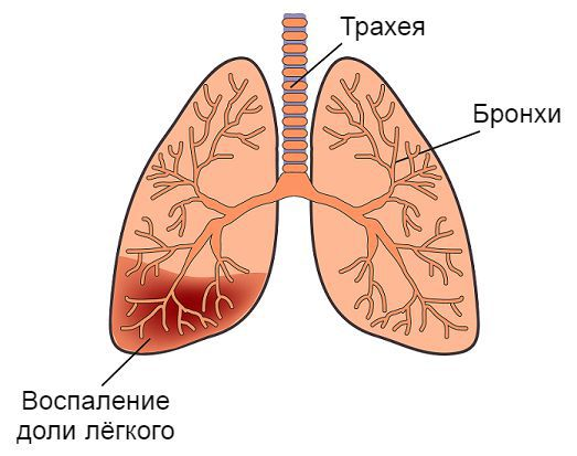 Воспаление доли лёгкого