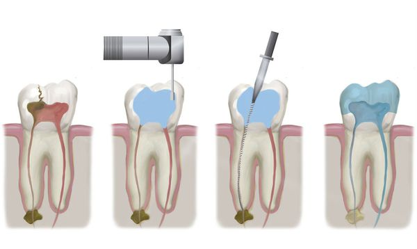 Эндодонтическое лечение корневых каналов