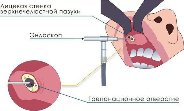 Микрогайморотомия
