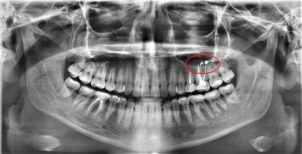 Пломбировочный материал в пазухе на ортопантомограмме