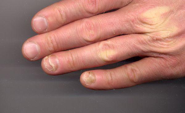 Один из видов ониходистрофии — онихолизис