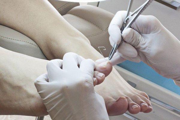 Удаоение ногтей при онихомикозе