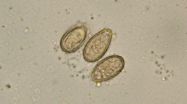 Яйца Opisthorchis felineus