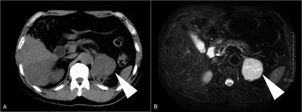 Опухоль надпочечника на снимках МРТ и КТ