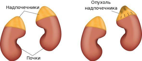 Патологическое изменение ткани надпочечников