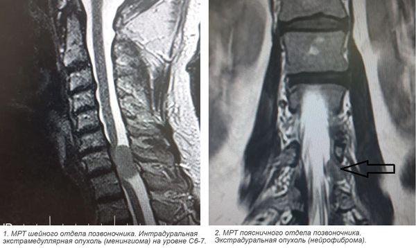 МРТ опухолей спинного мозга