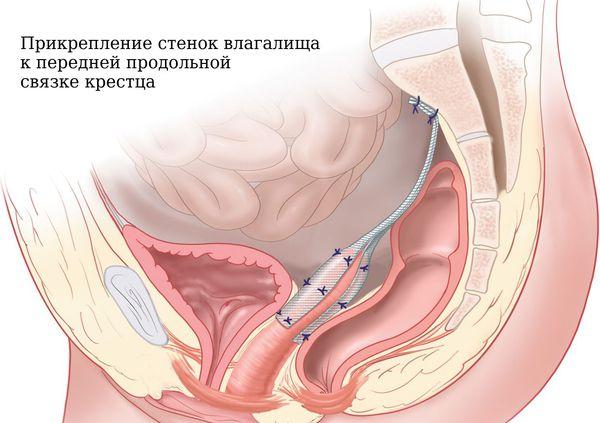 Сакрокольпопексия