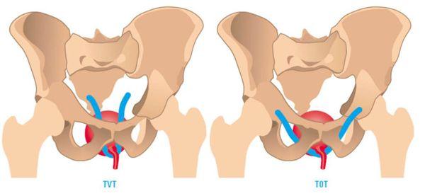 Слинговые (петлевые) операции