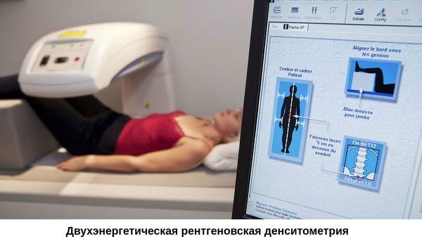 Двухэнергетическая рентгеновская денситометрия