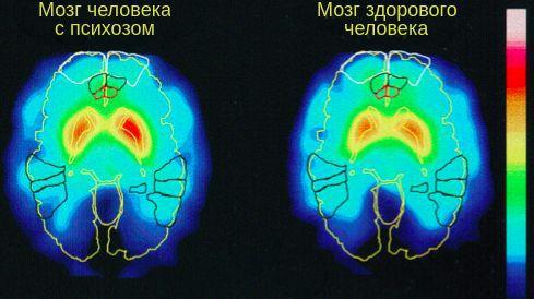 Функционирование мозга человека с острым психозом
