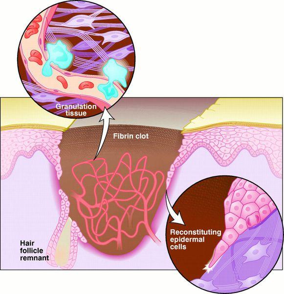 Образование фиброзной ткани
