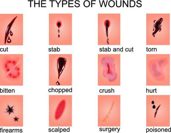 Типы ран