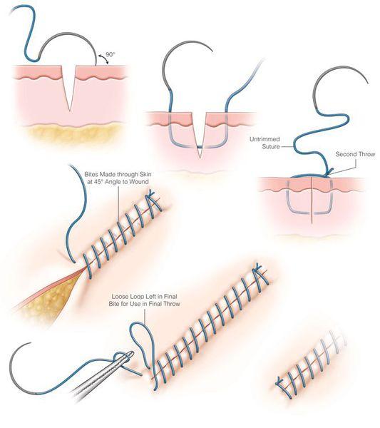 Восстановление целостности тканей путём ушивания