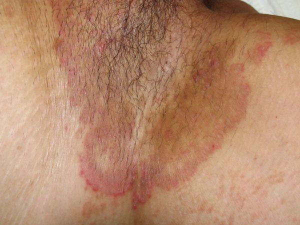 Кольцевидные очаги с периферическим отёчным валиком красного цвета