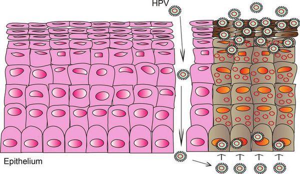Проникновение ВПЧ в организм через микроповреждение кожи