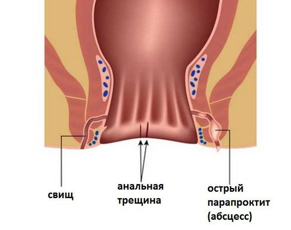 Besugárzási fájdalom prosztatitis