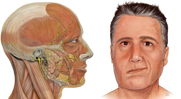 Парез лицевого нерва: причины, симптомы и лечение в статье ...