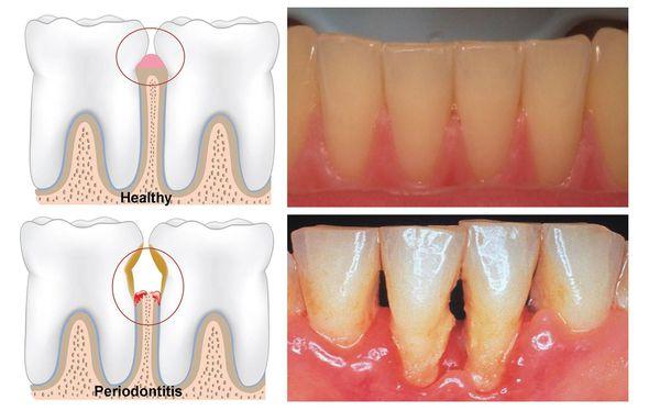 Атрофия тканей, удерживающих зуб