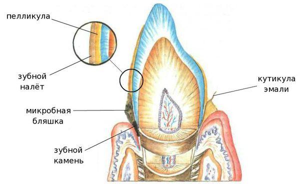 Зубной налёт и микробная бляшка