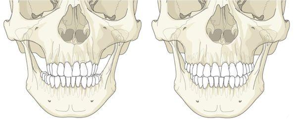 Гипо- и гиперплазия верхней челючти