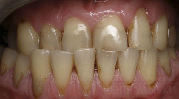 Клиновидные дефекты, сколы эмали и стираемость зубов при перекрёстном прикусе