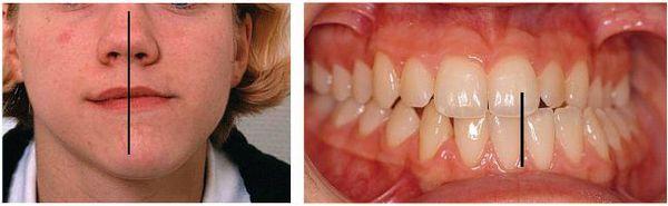 Несоответствие центральной линии зубов и лица