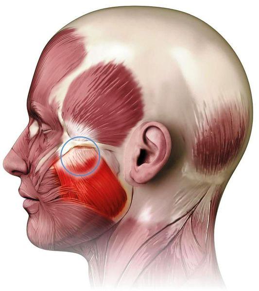 Парафункция жевательных мышц