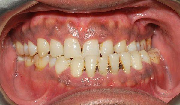 Перекрещивание зубных рядов