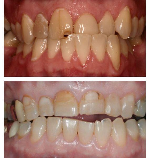 Повреждение твёрдых тканей зубов