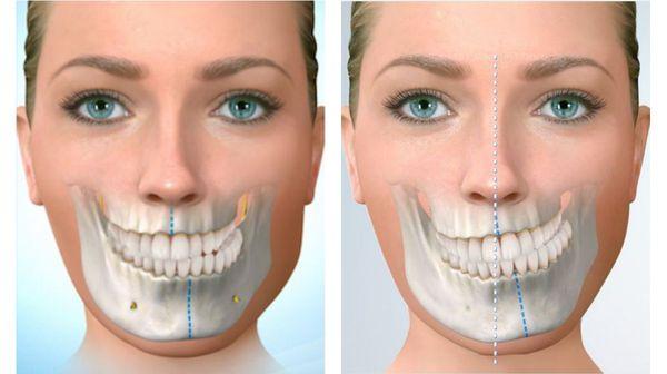 Сдвиг челюсти при перекрёстном прикусе