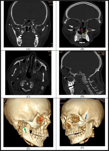 Компьютерная томография: перелом верхней челюсти