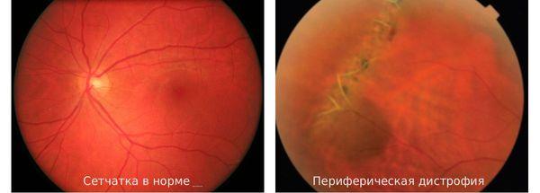 Сетчатка здорового глаза и сетчатка при периферической дистрофии