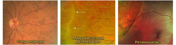 Виды ПХРД, которые могут привести к отслоению сетчатки