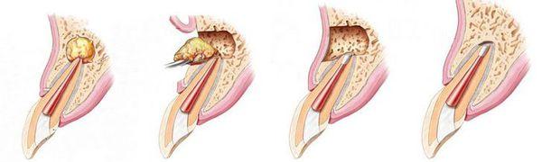 Удаление части корня зуба (резекция)