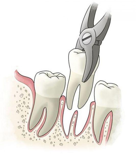 Удаление зуба целиком