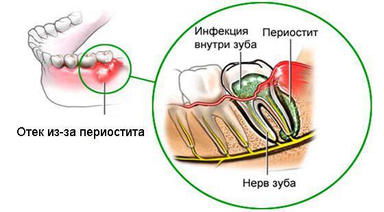 Воспаление надкостницы