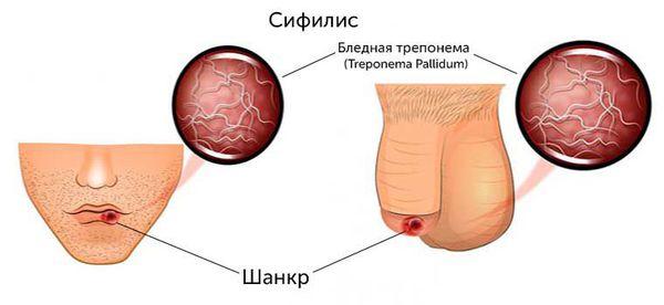 Первая стадия сифилиса