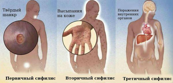 Стадии развития сифилиса