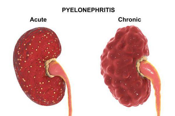 Острый и хронический пиелонефрит