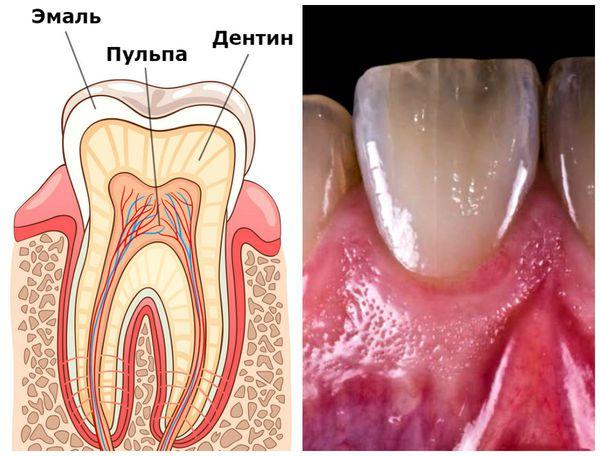 Эмаль, дентин, пульпа и естественный оттенок зуба