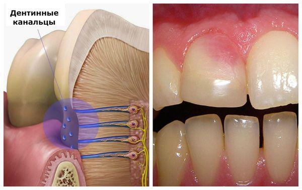 Окрашивание дентина после кровоизлияния в пульпе