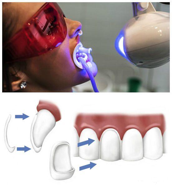 Отбеливание зубов и установка виниров