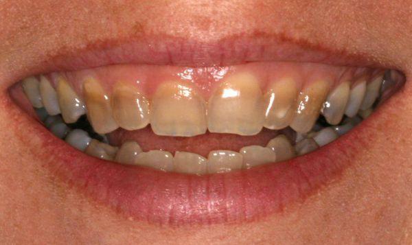 Пигментация постоянных зубов