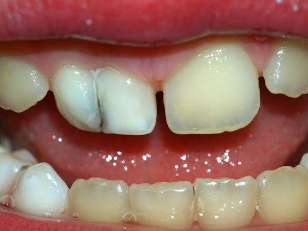 Потемнение молочного зуба после трещины