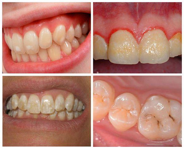 Симптомы пигментации зубов