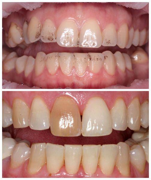 Точечная пигментация нескольких зубов и полное изменение оттенка одного зуба