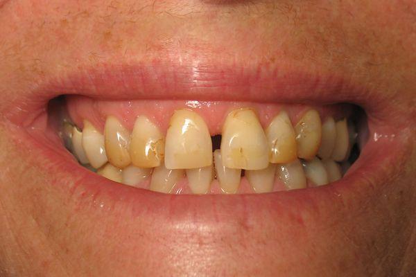 Зубы, пожелтевшие от частого употребления кофе