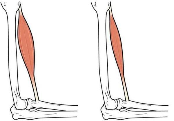 Похудание мышц руки