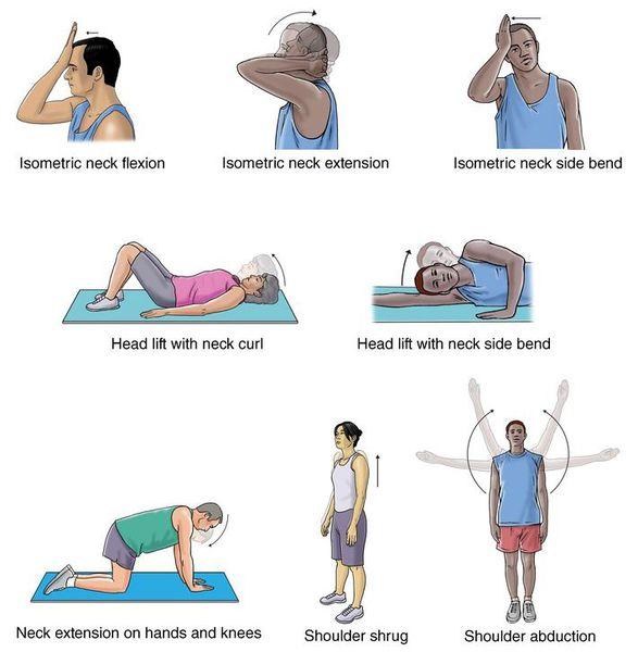 Упражнения, предотвращающие развитие плексита