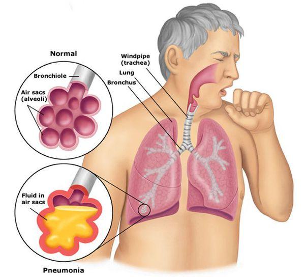 Альвеолы в норме и при пневмонии